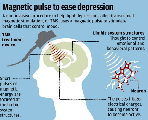 How does tms work tms you but the science behind tms is constantly being explored and understood today scientists can only observe the effects that electromagnetic ccuart